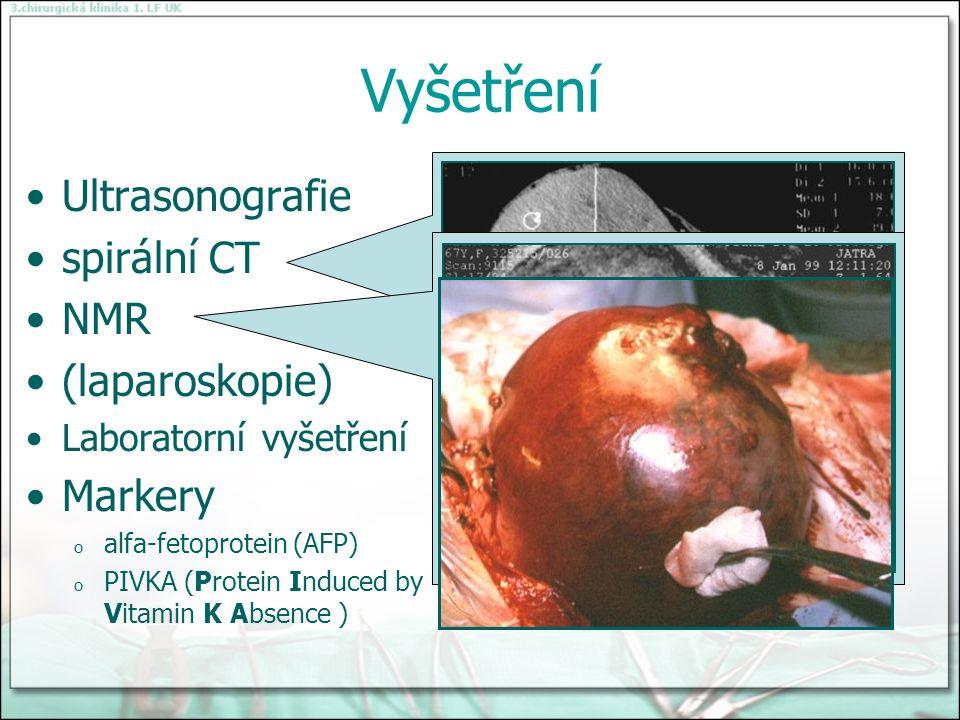Vyšetření Ultrasonografie spirální CT NMR (laparoskopie) Laboratorní vyšetření Markery o alfa-fetoprotein (AFP) o PIVKA (Protein Induced by Vitamin K Absence )