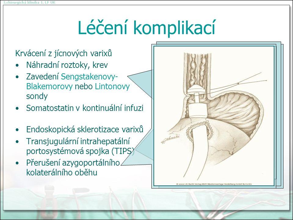 Léčení komplikací Krvácení z jícnových varixů Náhradní roztoky, krev Zavedení Sengstakenovy- Blakemorovy nebo Lintonovy sondy Somatostatin v kontinuální infuzi Endoskopická sklerotizace varixů Transjugulární intrahepatální portosystémová spojka (TIPS) Přerušení azygoportálního kolaterálního oběhu