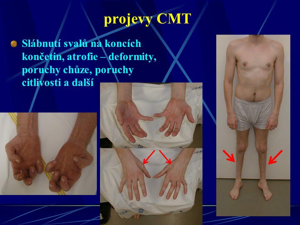 projevy CMT Slábnutí svalů na koncích končetin, atrofie – deformity, poruchy chůze, poruchy citlivosti a další
