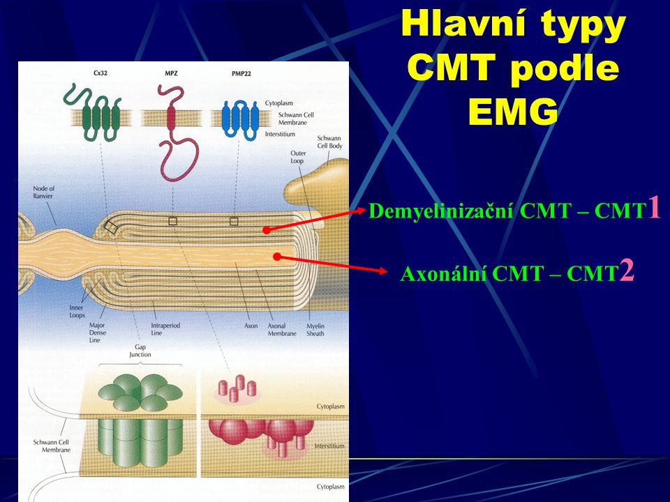 Hlavní typy CMT podle EMG Demyelinizační CMT – CMT 1 Axonální CMT – CMT 2