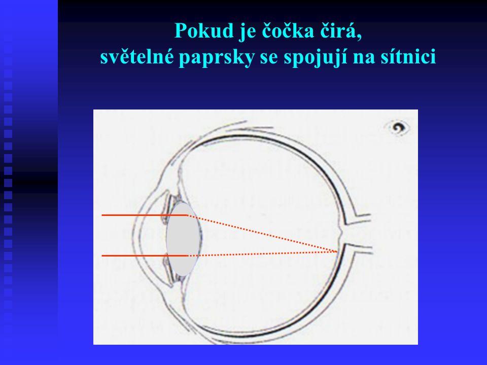 Pokud je čočka čirá, světelné paprsky se spojují na sítnici