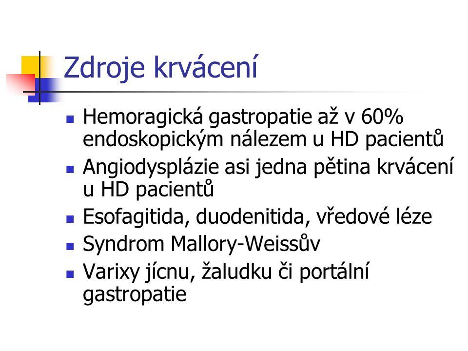Zdroje krvácení Hemoragická gastropatie až v 60% endoskopickým nálezem u HD pacientů Angiodysplázie asi jedna pětina krvácení u HD pacientů Esofagitid