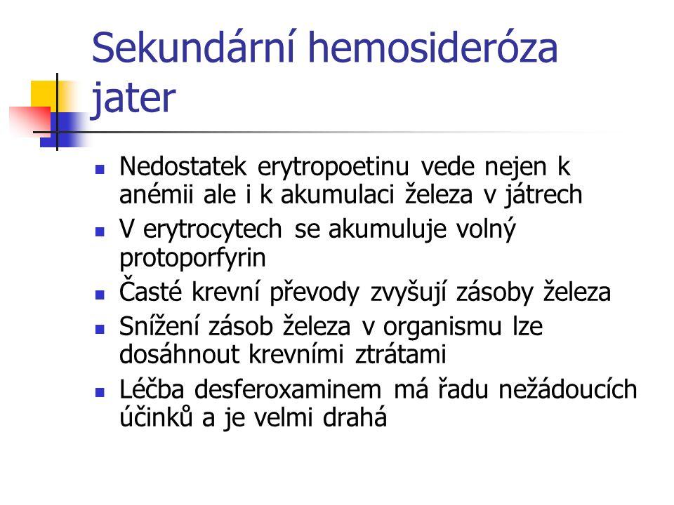 Sekundární hemosideróza jater Nedostatek erytropoetinu vede nejen k anémii ale i k akumulaci železa v játrech V erytrocytech se akumuluje volný protop