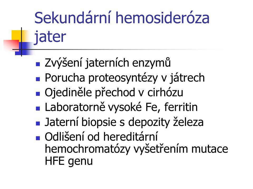 Sekundární hemosideróza jater Zvýšení jaterních enzymů Porucha proteosyntézy v játrech Ojediněle přechod v cirhózu Laboratorně vysoké Fe, ferritin Jat