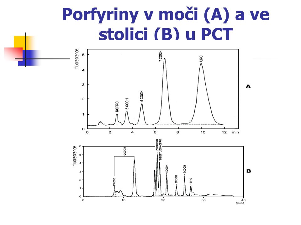 Porfyriny v moči (A) a ve stolici (B) u PCT