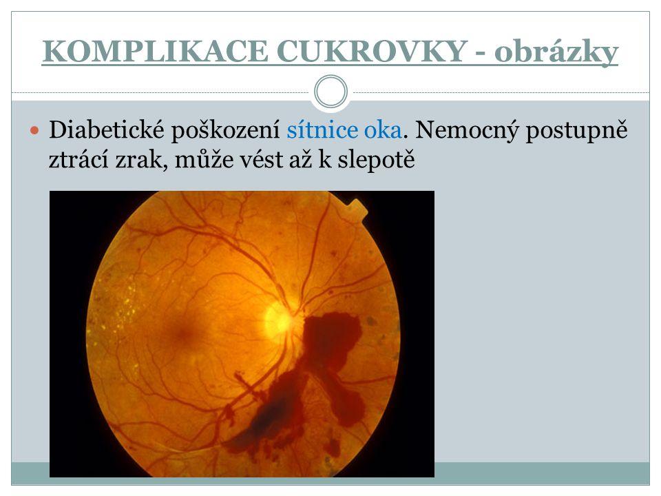 Diabetické poškození sítnice oka. Nemocný postupně ztrácí zrak, může vést až k slepotě