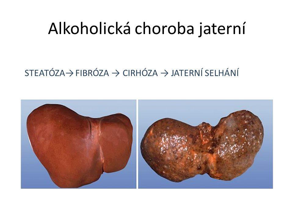 Alkoholická choroba jaterní STEATÓZA→ FIBRÓZA → CIRHÓZA → JATERNÍ SELHÁNÍ