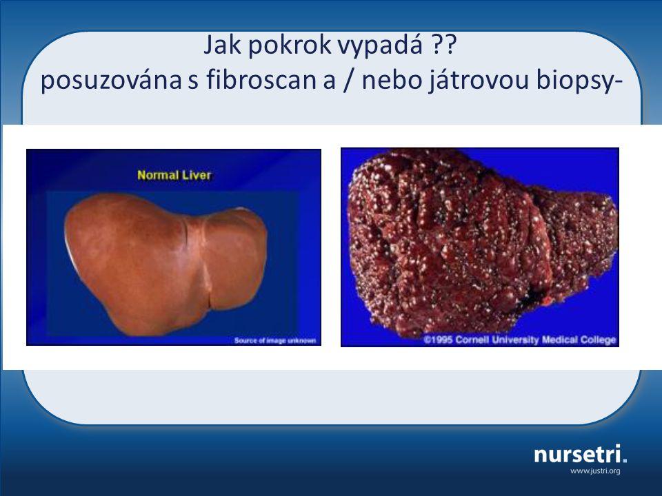 Jak pokrok vypadá ?? posuzována s fibroscan a / nebo játrovou biopsy-