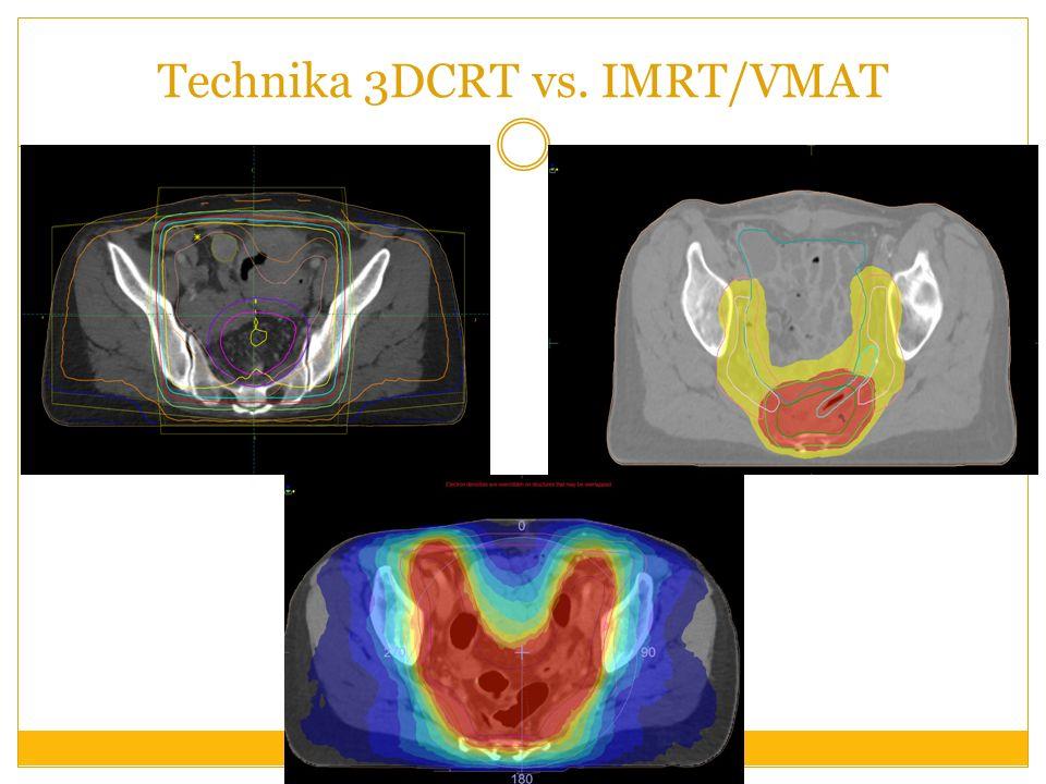 Technika 3DCRT vs. IMRT/VMAT