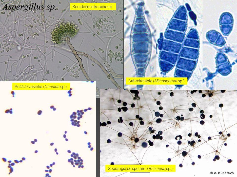 Konidiofor a konidiemi Sporangia se sporami (Rhizopus sp.) Pučící kvasinka (Candida sp.) Arthrokonidie (Microsporum sp.)