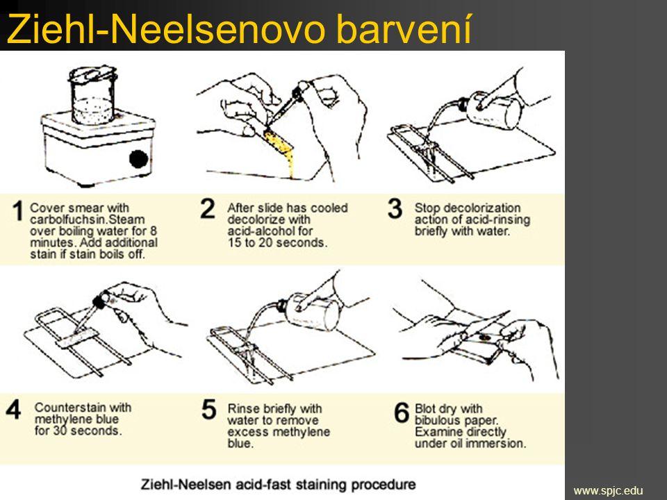 Ziehl-Neelsenovo barvení www.spjc.edu