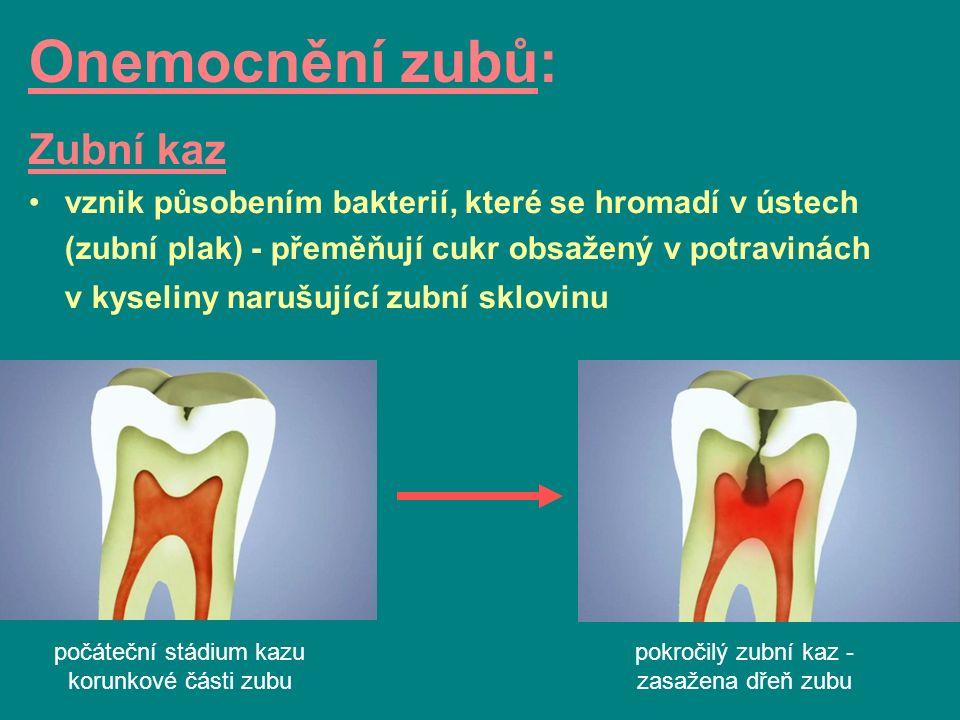 počáteční stádium kazu korunkové části zubu Onemocnění zubů: Zubní kaz vznik působením bakterií, které se hromadí v ústech (zubní plak) - přeměňují cukr obsažený v potravinách v kyseliny narušující zubní sklovinu pokročilý zubní kaz - zasažena dřeň zubu