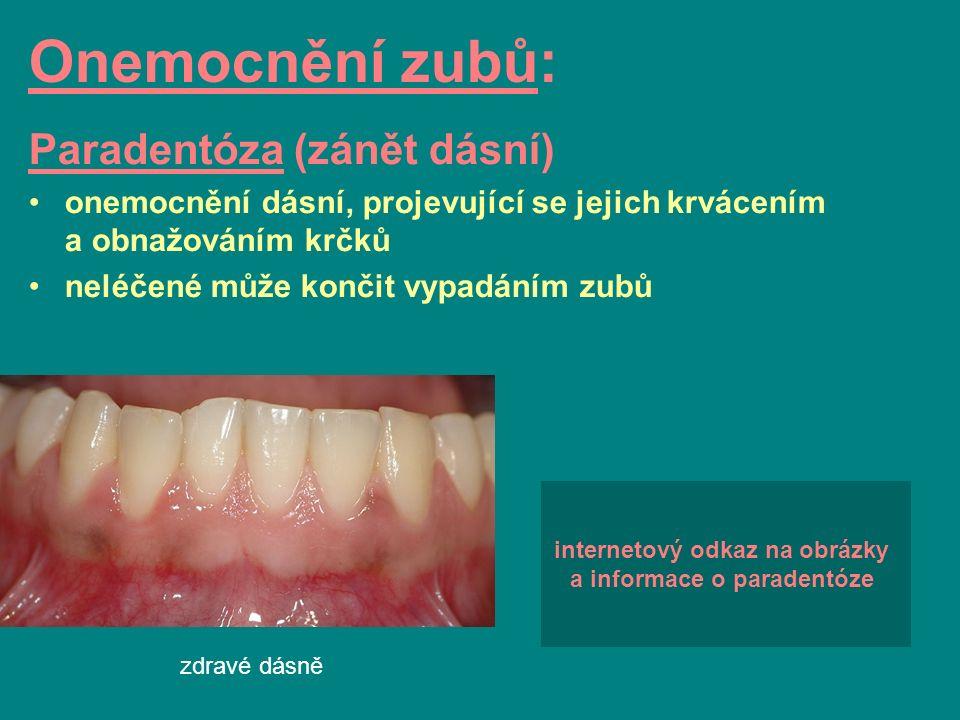 zdravé dásně Onemocnění zubů: Paradentóza (zánět dásní) onemocnění dásní, projevující se jejich krvácením a obnažováním krčků neléčené může končit vyp