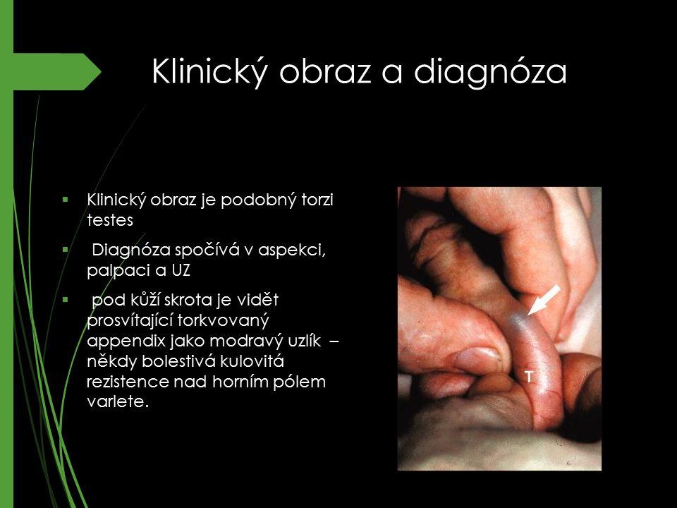 Klinický obraz a diagnóza  Klinický obraz je podobný torzi testes  Diagnóza spočívá v aspekci, palpaci a UZ  pod kůží skrota je vidět prosvítající