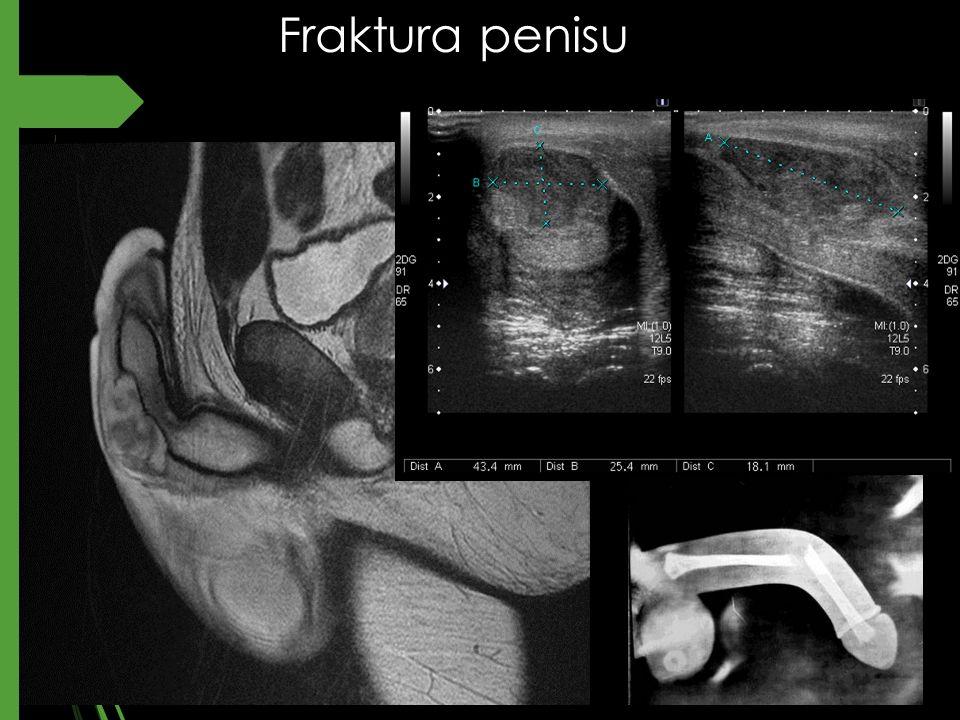 Fraktura penisu