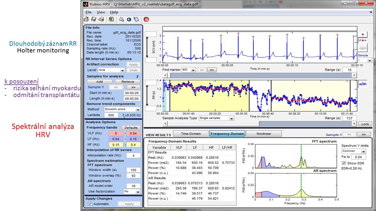 Spektrální analýza HRV Dlouhodobý záznam RR Holter monitoring k posouzení -rizika selhání myokardu -odmítání transplantátu