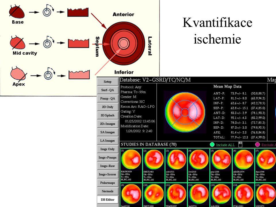 Kvantifikace rozsahu a závažnosti perfuzních defektů Kvantifikace ischemie