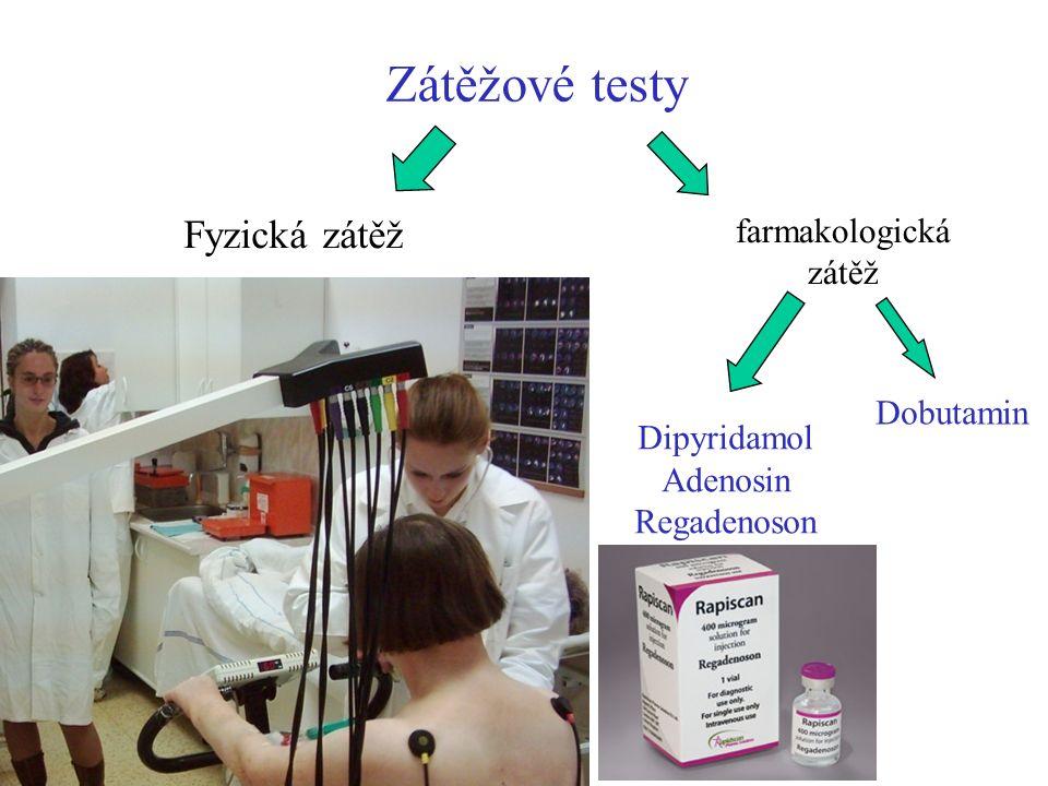 Zátěžové testy Dipyridamol Adenosin Regadenoson Fyzická zátěž farmakologická zátěž Dobutamin