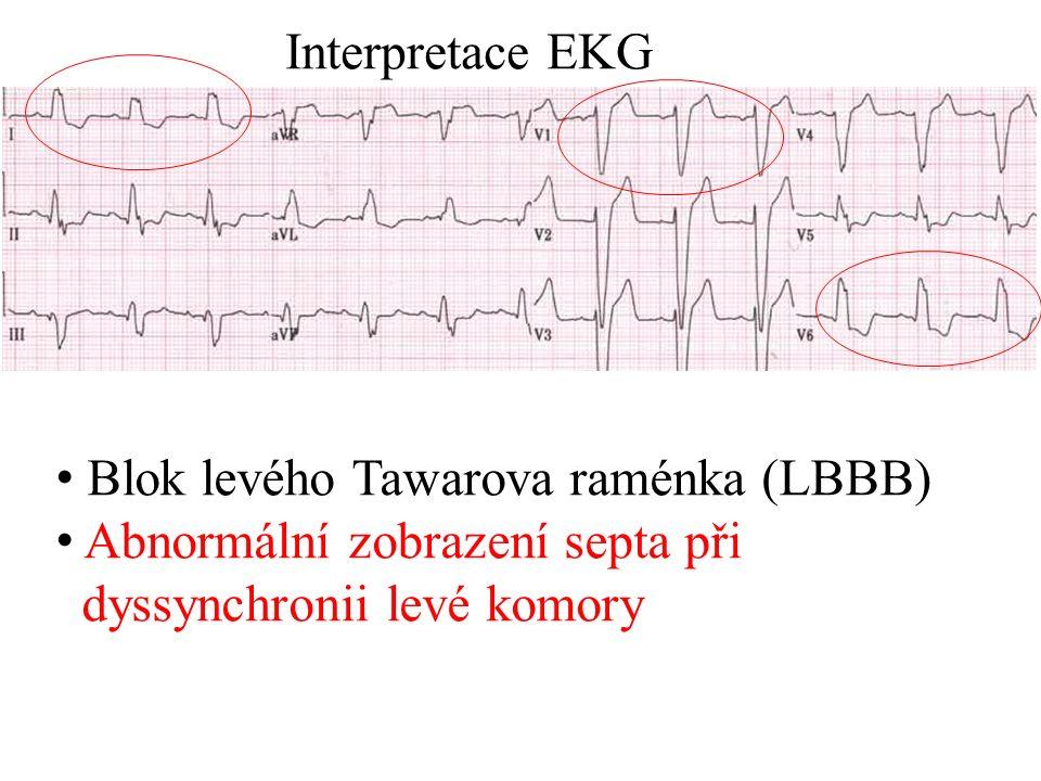 Blok levého Tawarova raménka (LBBB) Abnormální zobrazení septa při dyssynchronii levé komory