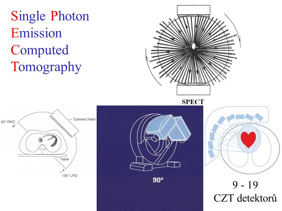 Single Photon Emission Computed Tomography 9 - 19 CZT detektorů