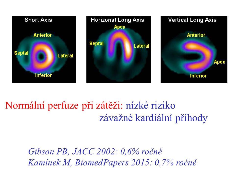 Normální perfuze při zátěži: nízké riziko závažné kardiální příhody Gibson PB, JACC 2002: 0,6% ročně Kamínek M, BiomedPapers 2015: 0,7% ročně