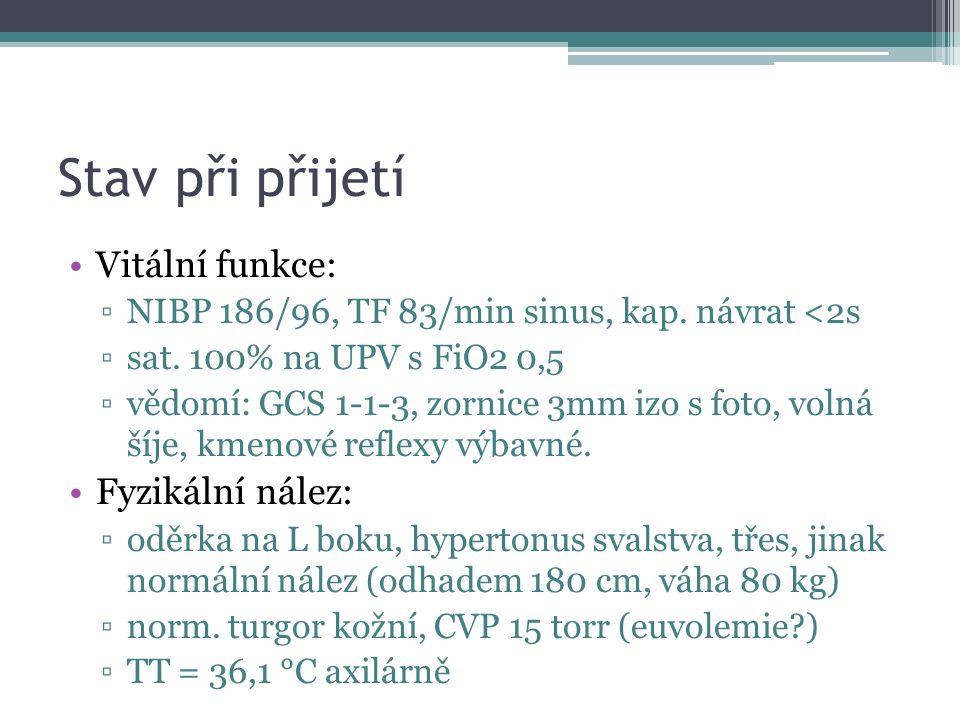Stav při přijetí Vitální funkce: ▫NIBP 186/96, TF 83/min sinus, kap.