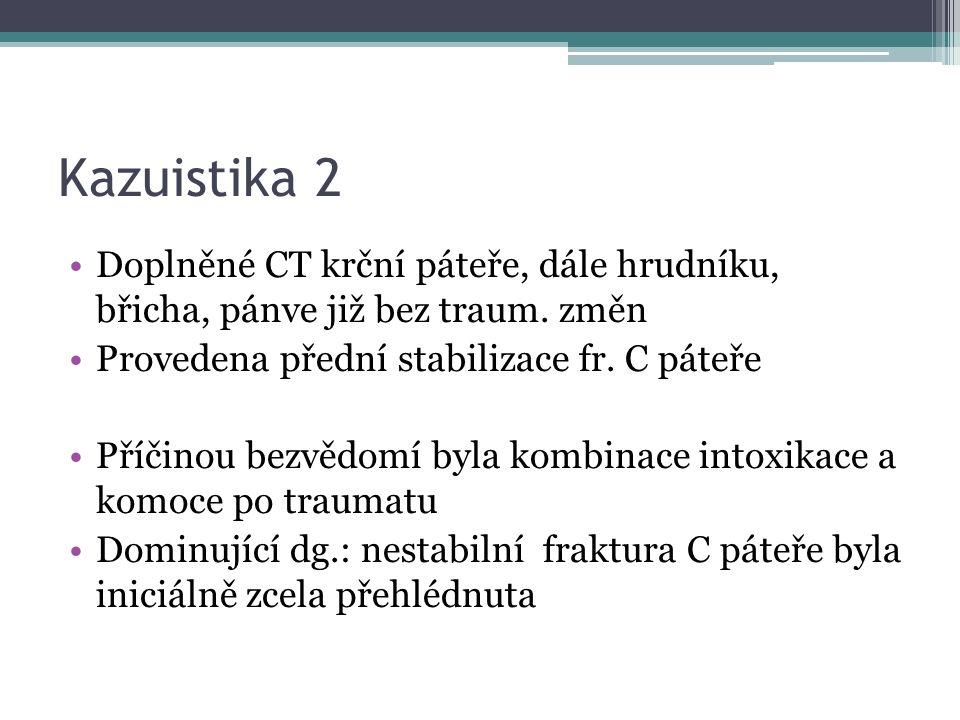 Kazuistika 2 Doplněné CT krční páteře, dále hrudníku, břicha, pánve již bez traum. změn Provedena přední stabilizace fr. C páteře Příčinou bezvědomí b