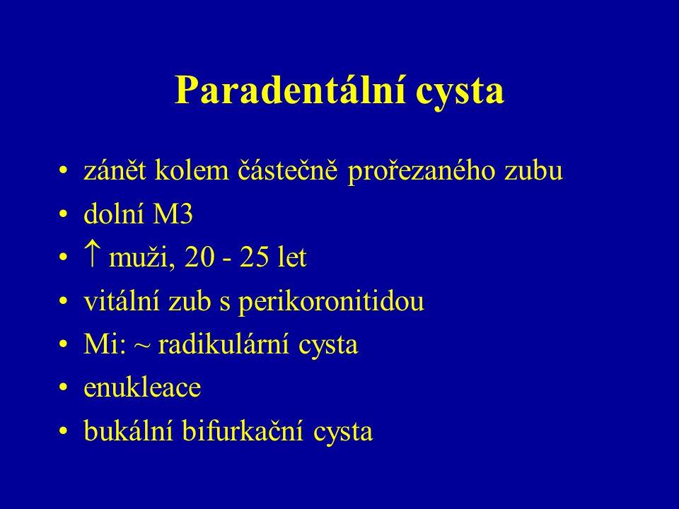 Paradentální cysta zánět kolem částečně prořezaného zubu dolní M3  muži, 20 - 25 let vitální zub s perikoronitidou Mi: ~ radikulární cysta enukleace bukální bifurkační cysta