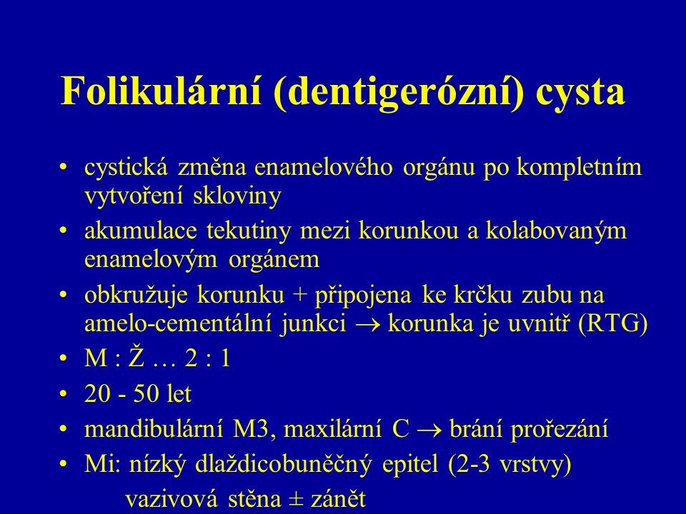 Folikulární (dentigerózní) cysta cystická změna enamelového orgánu po kompletním vytvoření skloviny akumulace tekutiny mezi korunkou a kolabovaným enamelovým orgánem obkružuje korunku + připojena ke krčku zubu na amelo-cementální junkci  korunka je uvnitř (RTG) M : Ž … 2 : 1 20 - 50 let mandibulární M3, maxilární C  brání prořezání Mi: nízký dlaždicobuněčný epitel (2-3 vrstvy) vazivová stěna ± zánět