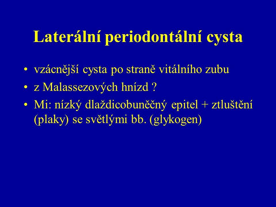 Laterální periodontální cysta vzácnější cysta po straně vitálního zubu z Malassezových hnízd .