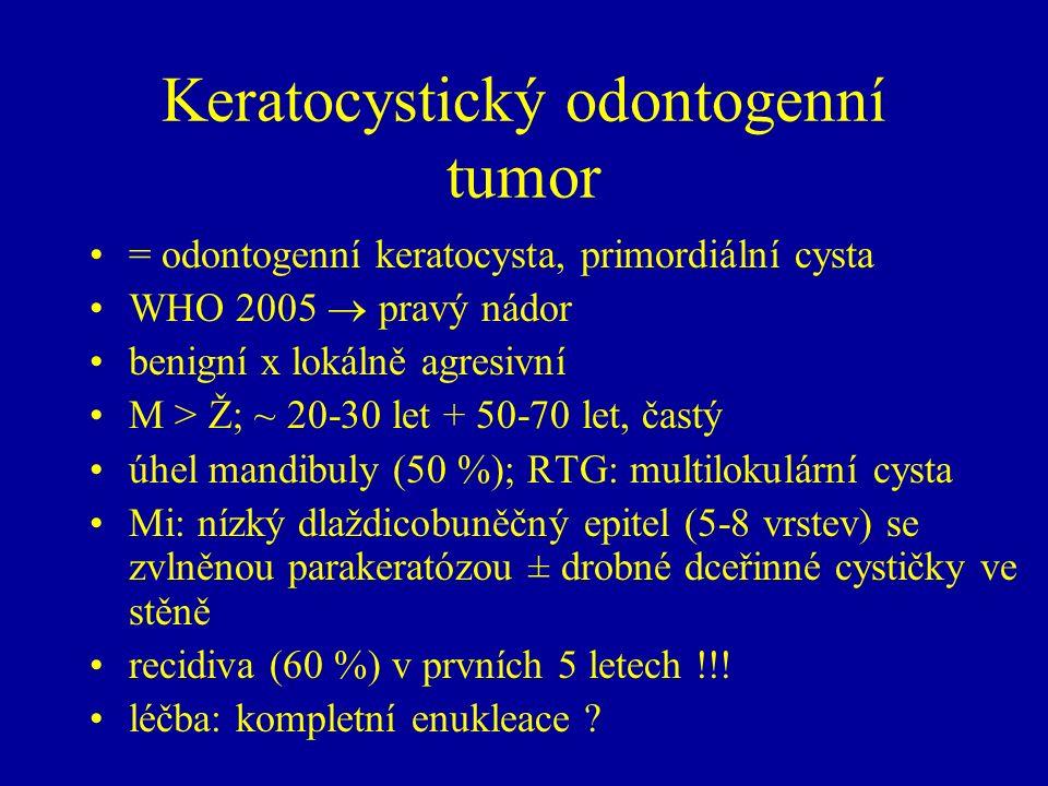Keratocystický odontogenní tumor = odontogenní keratocysta, primordiální cysta WHO 2005  pravý nádor benigní x lokálně agresivní M > Ž; ~ 20-30 let + 50-70 let, častý úhel mandibuly (50 %); RTG: multilokulární cysta Mi: nízký dlaždicobuněčný epitel (5-8 vrstev) se zvlněnou parakeratózou ± drobné dceřinné cystičky ve stěně recidiva (60 %) v prvních 5 letech !!.