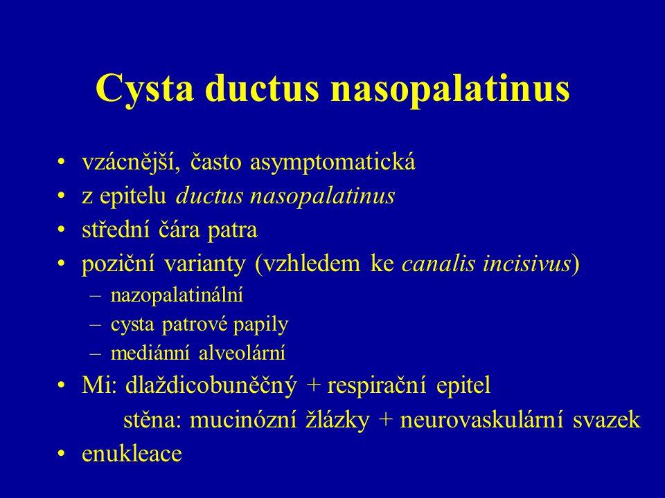 Cysta ductus nasopalatinus vzácnější, často asymptomatická z epitelu ductus nasopalatinus střední čára patra poziční varianty (vzhledem ke canalis incisivus) –nazopalatinální –cysta patrové papily –mediánní alveolární Mi: dlaždicobuněčný + respirační epitel stěna: mucinózní žlázky + neurovaskulární svazek enukleace