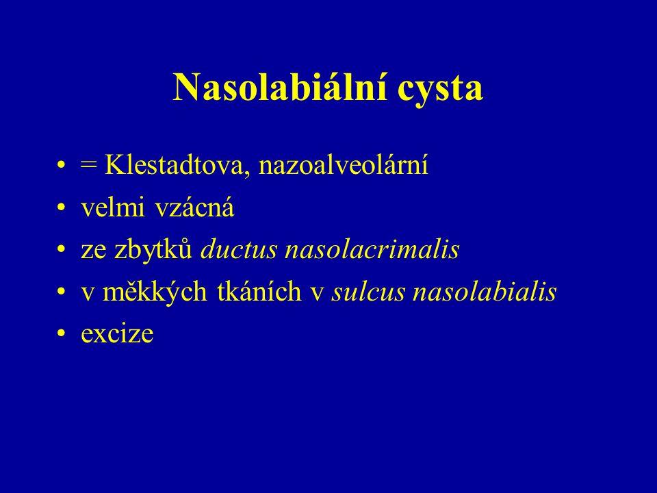 Nasolabiální cysta = Klestadtova, nazoalveolární velmi vzácná ze zbytků ductus nasolacrimalis v měkkých tkáních v sulcus nasolabialis excize