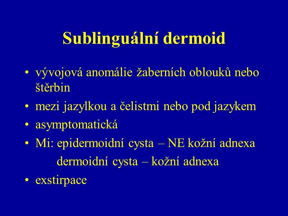 Sublinguální dermoid vývojová anomálie žaberních oblouků nebo štěrbin mezi jazylkou a čelistmi nebo pod jazykem asymptomatická Mi: epidermoidní cysta – NE kožní adnexa dermoidní cysta – kožní adnexa exstirpace