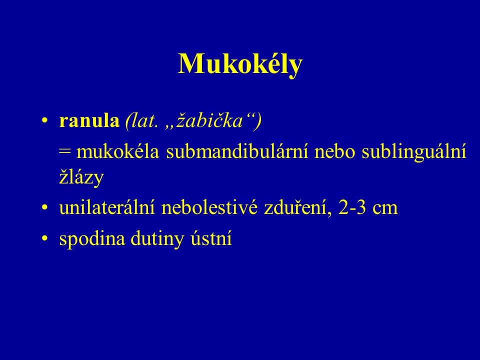 Mukokély ranula (lat.