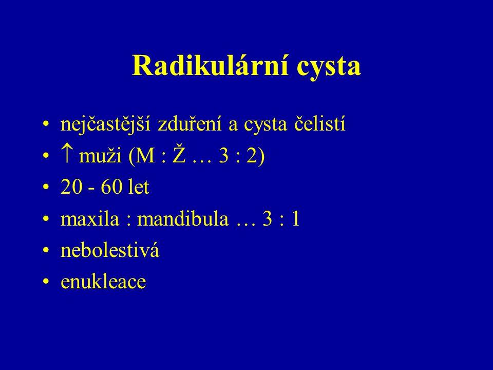 Radikulární cysta nejčastější zduření a cysta čelistí  muži (M : Ž … 3 : 2) 20 - 60 let maxila : mandibula … 3 : 1 nebolestivá enukleace