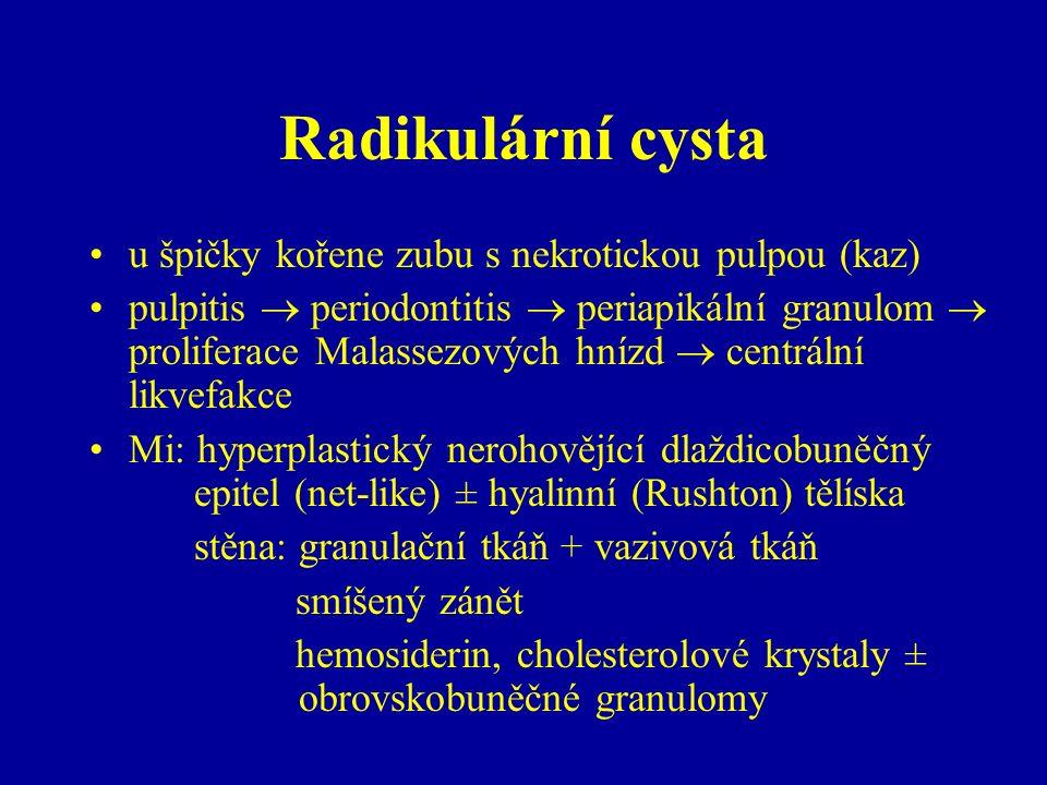 Radikulární cysta u špičky kořene zubu s nekrotickou pulpou (kaz) pulpitis  periodontitis  periapikální granulom  proliferace Malassezových hnízd  centrální likvefakce Mi: hyperplastický nerohovějící dlaždicobuněčný epitel (net-like) ± hyalinní (Rushton) tělíska stěna: granulační tkáň + vazivová tkáň smíšený zánět hemosiderin, cholesterolové krystaly ± obrovskobuněčné granulomy