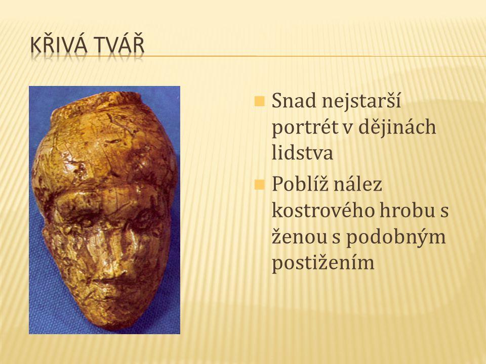 Snad nejstarší portrét v dějinách lidstva Poblíž nález kostrového hrobu s ženou s podobným postižením