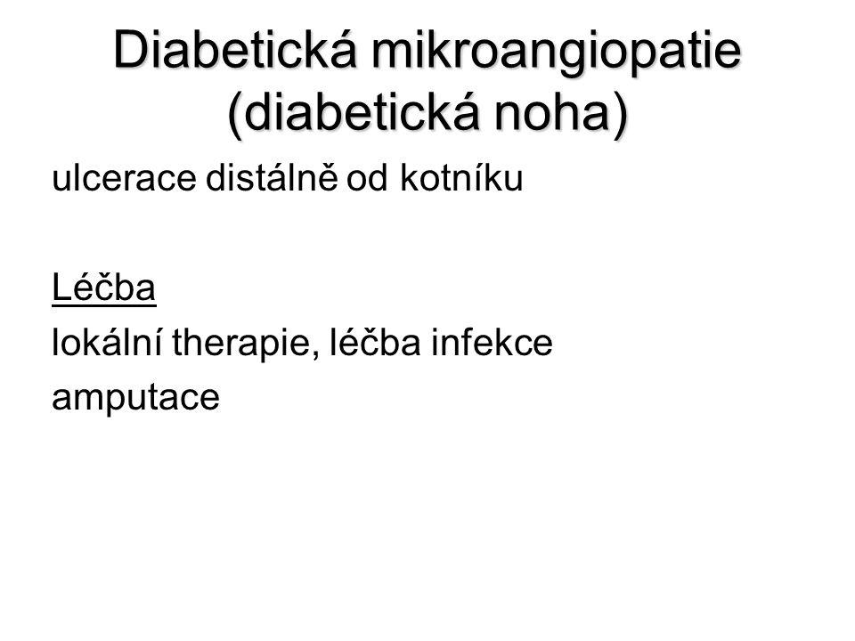 Diabetická mikroangiopatie (diabetická noha) ulcerace distálně od kotníku Léčba lokální therapie, léčba infekce amputace