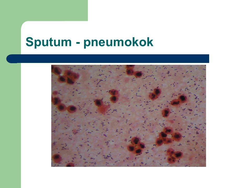 Sputum - pneumokok