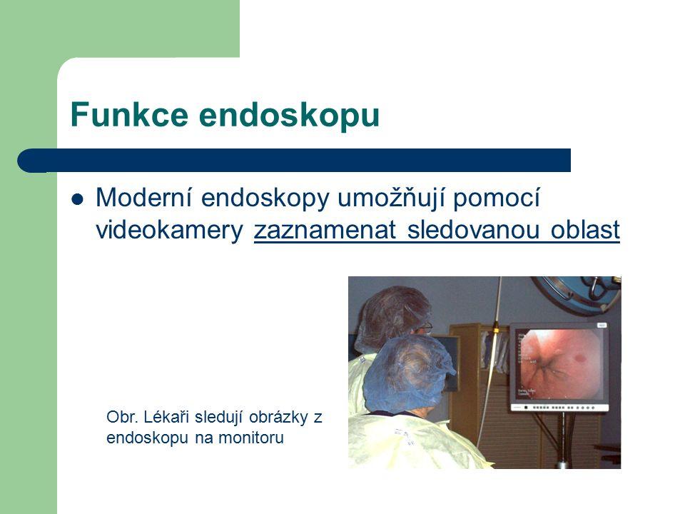 Funkce endoskopu Často jsou endoskopy doplněny i zařízením, který lze odebrat vzorek tkáně, nebo provést chirurgický zákrok (např.
