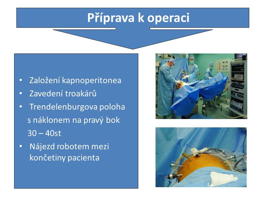 Příprava k operaci Založení kapnoperitonea Zavedení troakárů Trendelenburgova poloha s náklonem na pravý bok 30 – 40st Nájezd robotem mezi končetiny pacienta