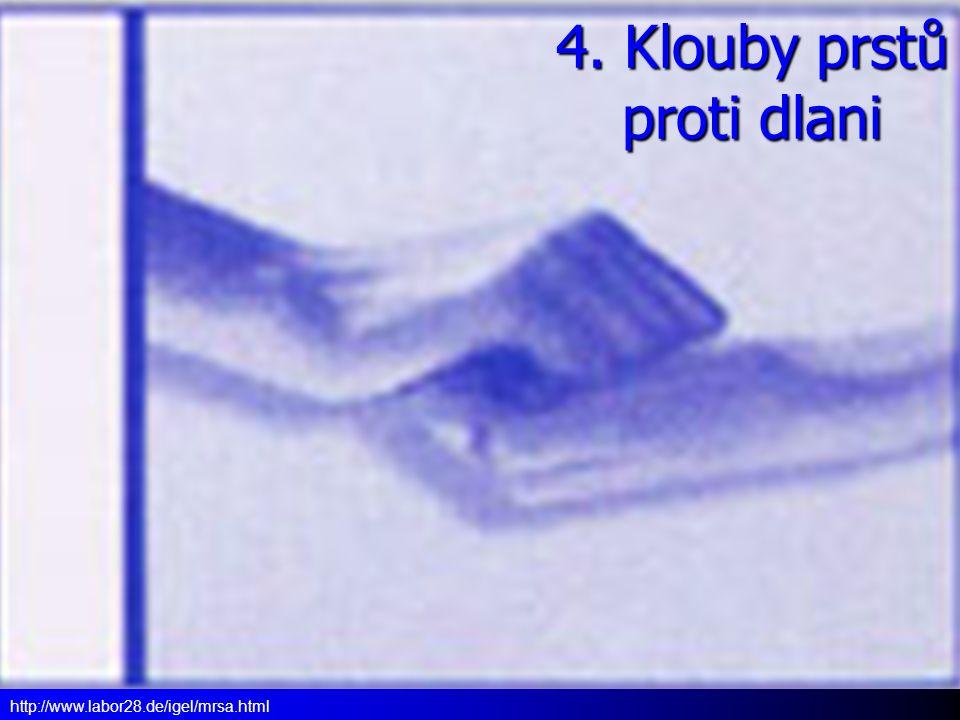 4. Klouby prstů proti dlani http://www.labor28.de/igel/mrsa.html