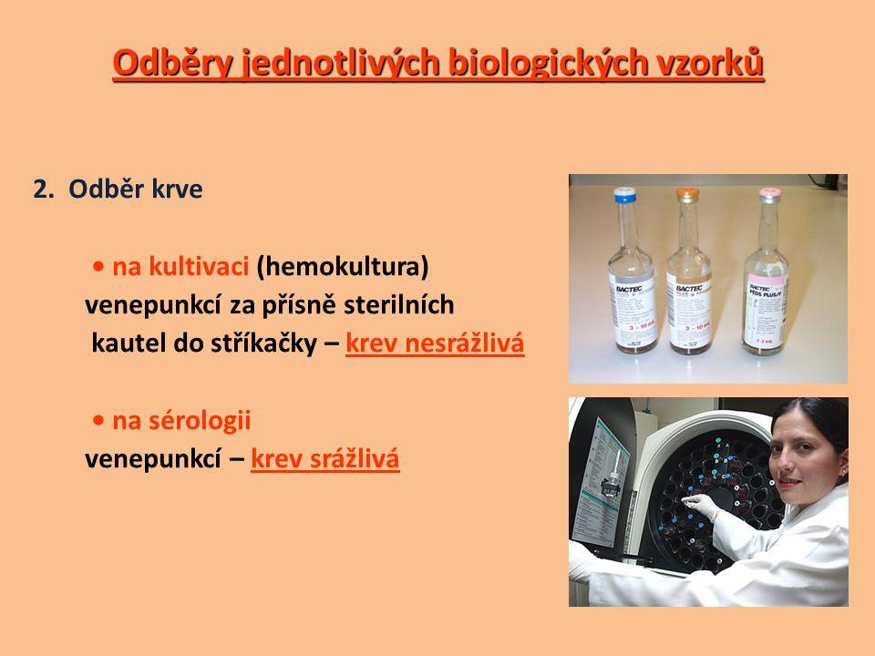 Odběry jednotlivých biologických vzorků 2.