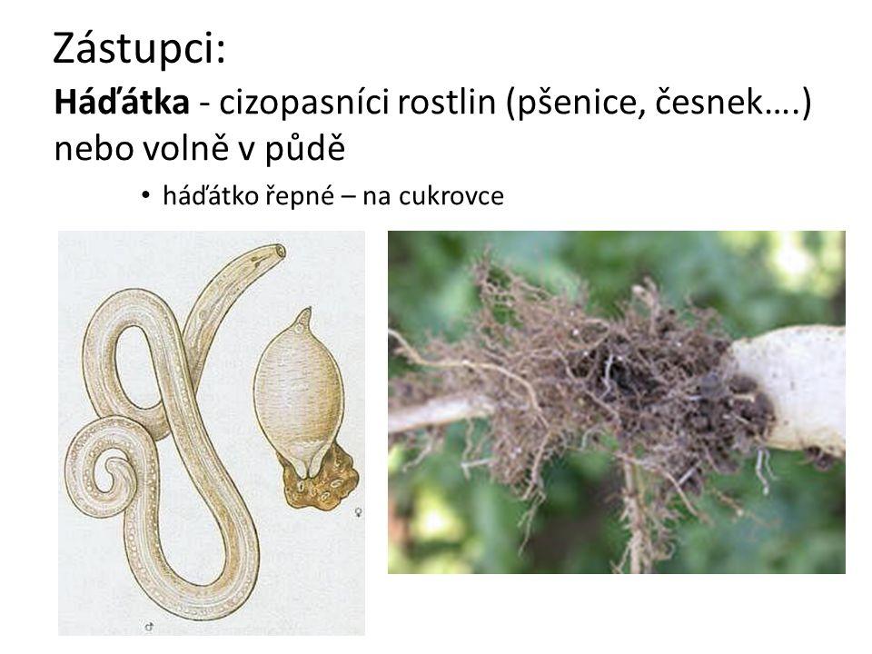 Zástupci: Háďátka - cizopasníci rostlin (pšenice, česnek….) nebo volně v půdě háďátko řepné – na cukrovce