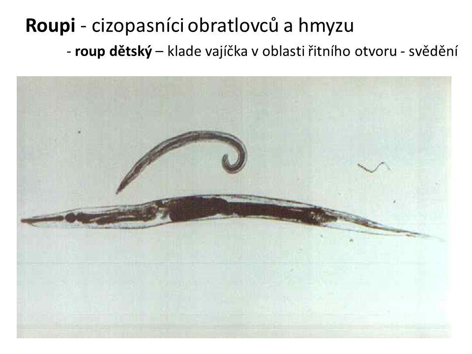 Roupi - cizopasníci obratlovců a hmyzu - roup dětský – klade vajíčka v oblasti řitního otvoru - svědění