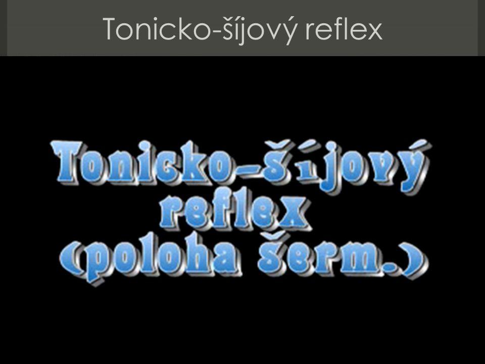 Tonicko-šíjový reflex