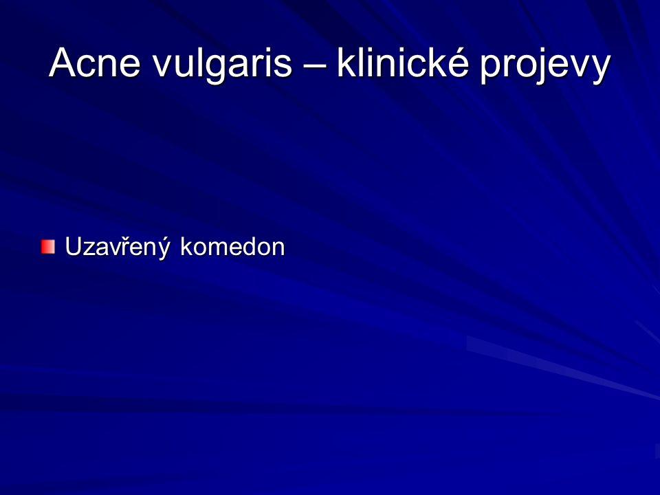 Acne vulgaris – klinické projevy Uzavřený komedon