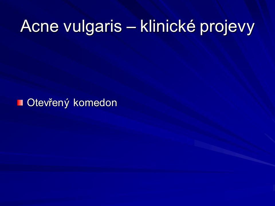 Acne vulgaris – klinické projevy Otevřený komedon