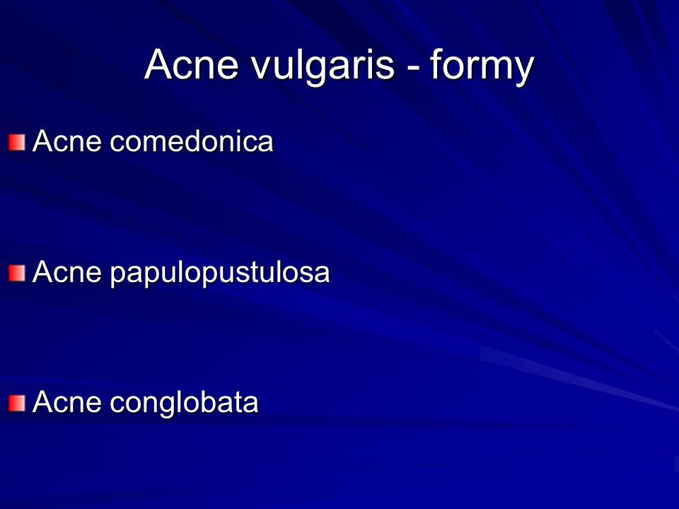 Acne vulgaris - formy Acne comedonica Acne papulopustulosa Acne conglobata